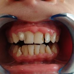 Initial situation /decays and gingival hypertrophy/