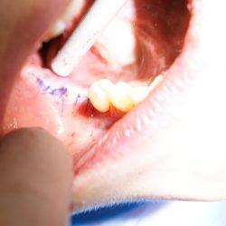 Болният зъб е изваден, мястото е запълненено с костно вещество и мембрана и са поставени 2 зъбни имплантата.