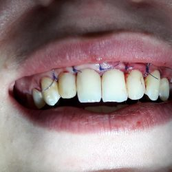 Sutures after gingivectomy and alveolar bone remodeling under the gingiva