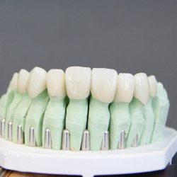 Dental lab model with porcelain veneers