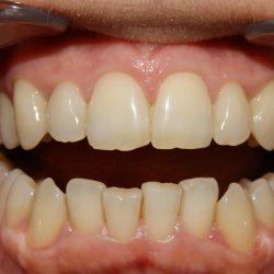Teeth before bleaching