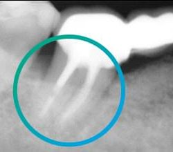 След 8 месеца зъбът вече е заобиколен от здрава кост.