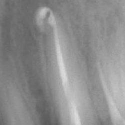 На рентгеновата снимка ясно се вижда, че 6 месеца след запълване на канала костта около корена е възстановена.