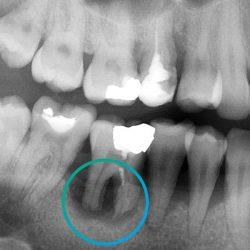 Недостатъчната кост за поставяне на имплант.