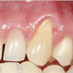 Отдръпване на венеца/оголване на зъбната шийка (гингивална рецесия)