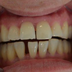 Space between teeth