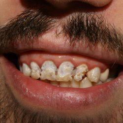 Teeth damaged by decay