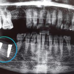 Successful bone regeneration after bone grafting procedure.