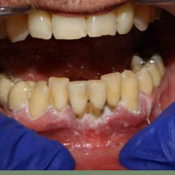 32 year old patient with significant bone loss and gingival recession.